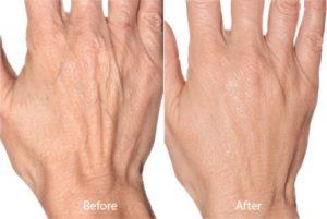 hand rejuvenation in scottsdale, az