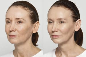 restylane lyft before/after
