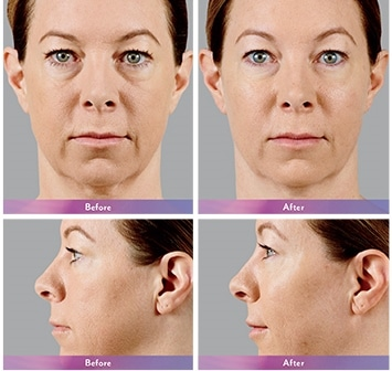 Injectables Phoenix | Cosmetic Injections | Dermal Fillers | Wrinkle Reducer
