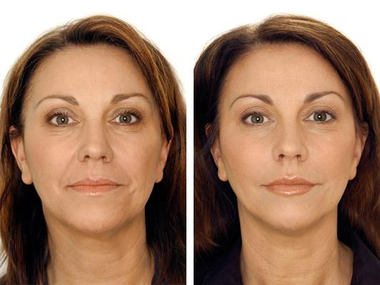 Before and after dysport wrinkle remover injectable treatment