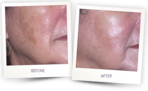 results from aesthetic skin treatments