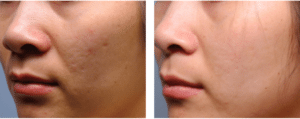 dermaplaning-before-after
