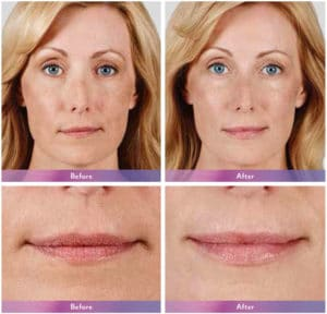juvederm ultra results scottsdale, az