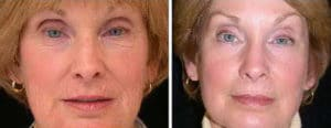 laser resurfacing results