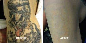 tattoo removal scottsdale, az