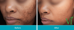 vi-peels-treatment-before-and-after-1