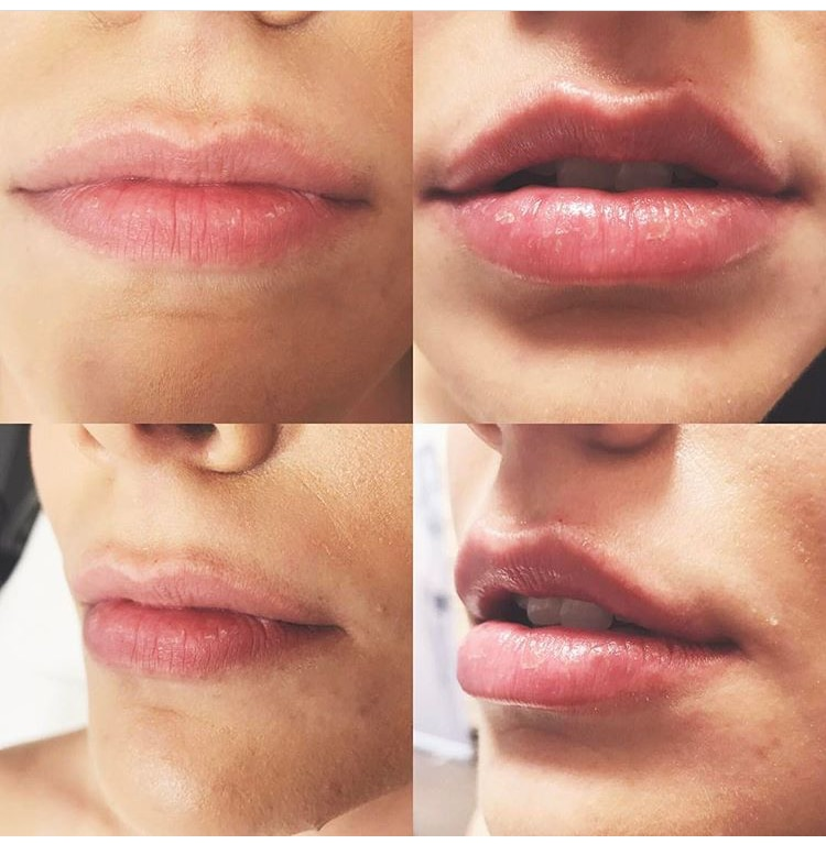 Before and after Juvederm lip augmentation and filler treatment